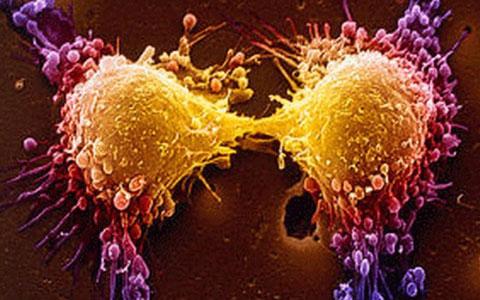 سرطان و راههای پیشگیری